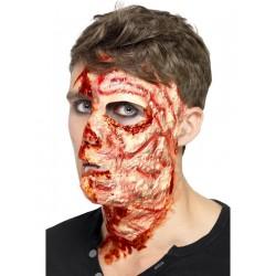 Cicatrice arsura fata autoadeziva