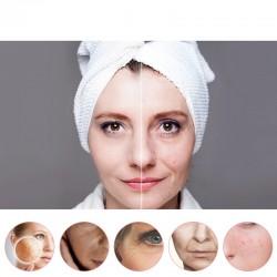 Aparat masaj facial cu ultrasunet 5 in 1, fototerapie, antirid, ecran LCD, reincarcabil 750mAh